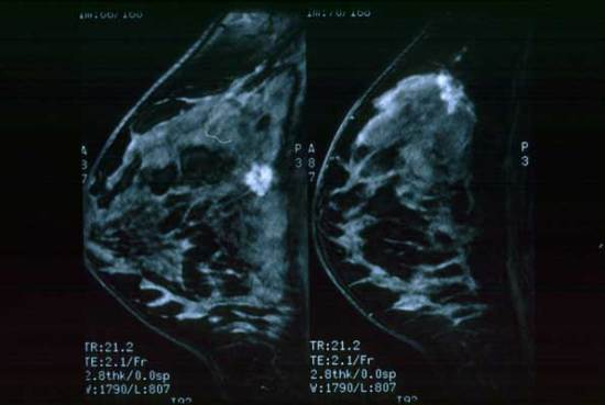 CANCER MAMA ULTRASONIDO
