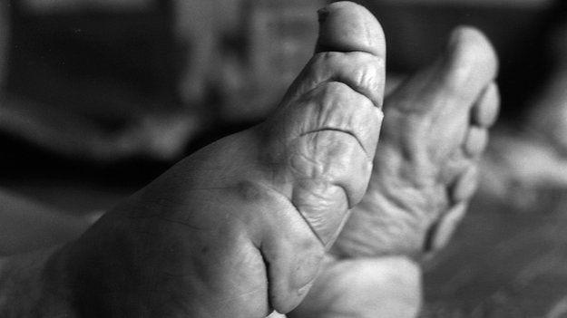 Con el tiempo, se van quebrando los dedos atados bajo los pies.