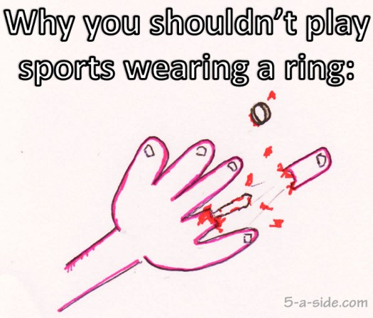If your ring gets caught on something while you're playing sport, it's possible that it will to horrific damage, stripping the flesh from the top part of the finger.