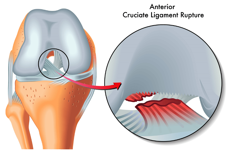Anterior Cruciate Injury ACL