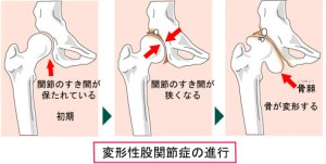 orthopedic_faq_img09