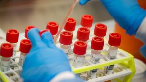 States With No Case Of coronavirus