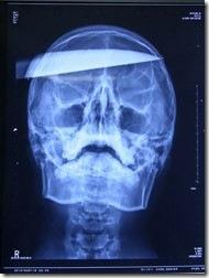 x-ray-rex-smv