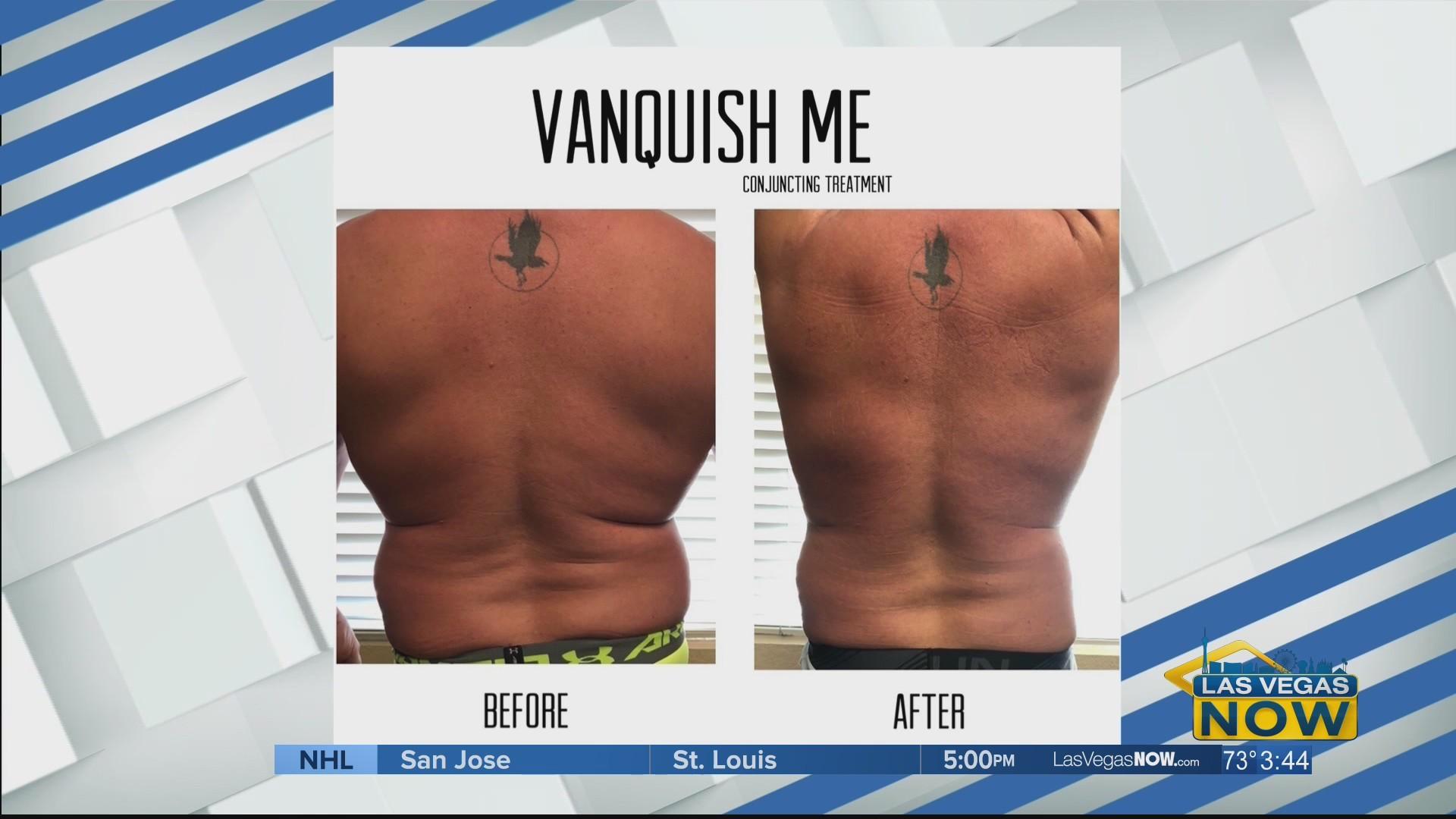 """The """"Vanquish Me"""" procedure kills fat cells permanently"""