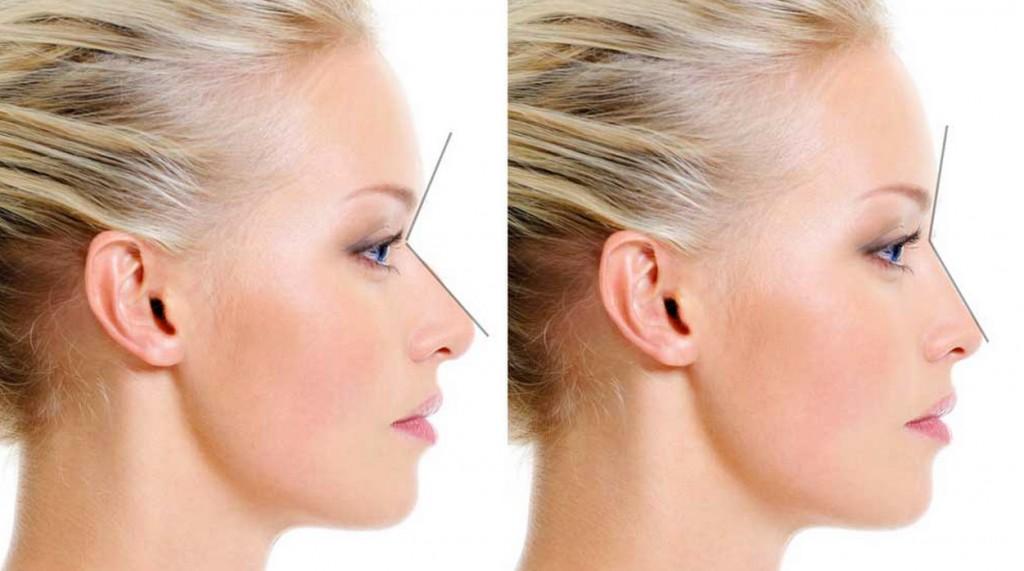 Fresh Start Skin Care Laser