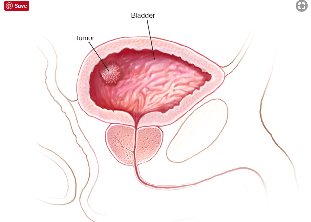 bladder cancer causes