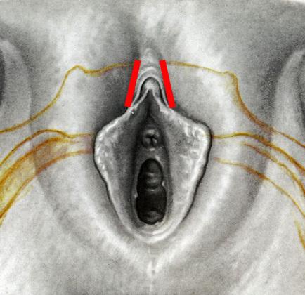 no clitoral hood