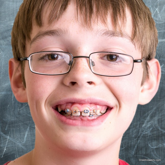 boy_braces_blue_orange_bands