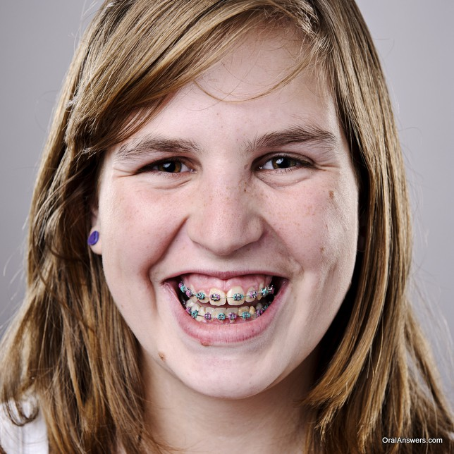 braces_teenage_girl_purple_earings_pink_green_bands
