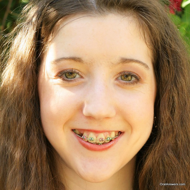 braces_teenager_pink_green_colors