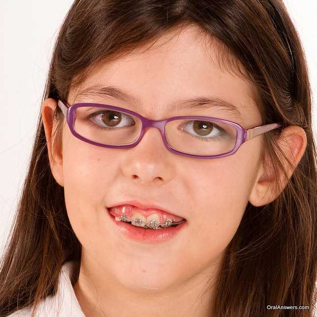 teeange_girl_glasses_braces