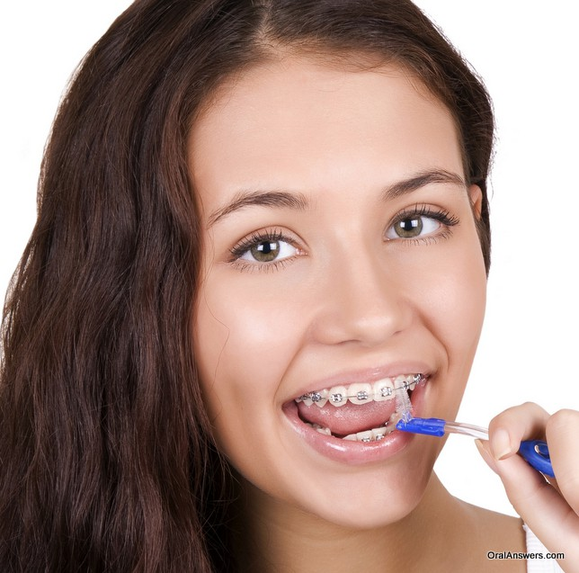 teenage_girl_braces_hygiene
