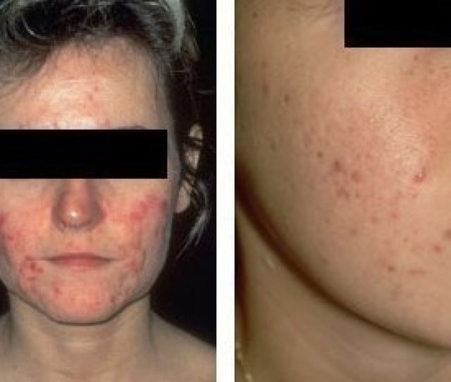 Diseases Adult Acne Jpg