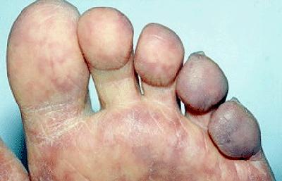 blue-toe-syndrome.jpg