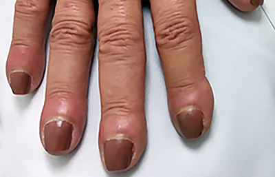 clubbing-curved-nails.jpg
