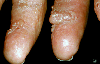 large-lumps-on-fingers.jpg