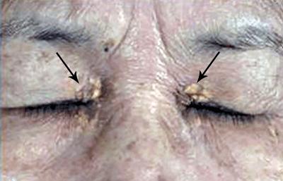 waxy-growths-on-eyelids.jpg