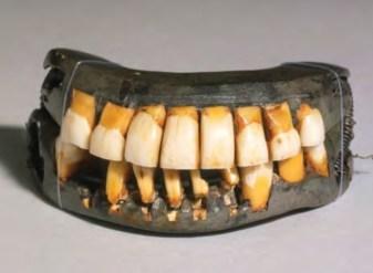 A set of historical dentures