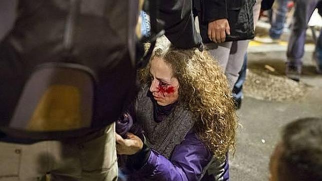 Familia y amigos de la mujer herida en el ojo en Barcelona van a depurar responsabilidades