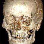 Ötzi, «el hombre de hielo», tenía caries por abusar del pan y la avena