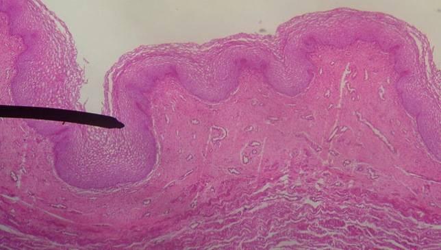 La mucosidad intestinal tiene funciones antiinflamatorias