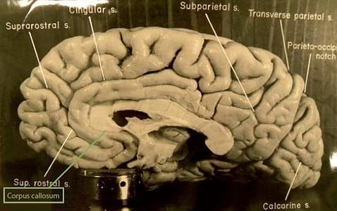 La clave de la inteligencia de Einstein, un cerebro bien conectado