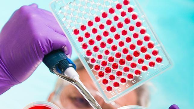 Un test sanguíneo detecta el alzhéimer con tres años de antelación y el 90% de precisión