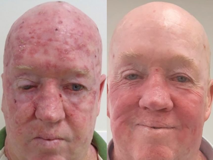 A before and after image of a man treated for skin cancers on his head