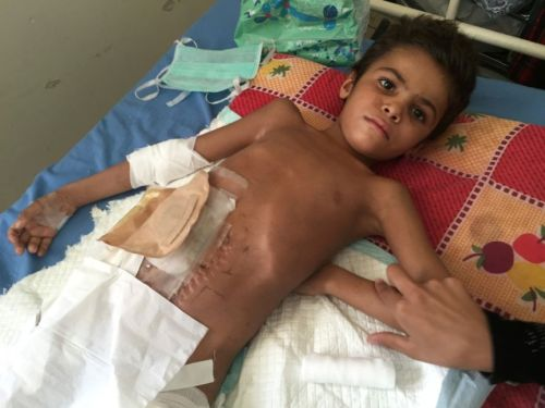 An 8-year-old boy lies on a bed with heavy bandages covering his abdomen.