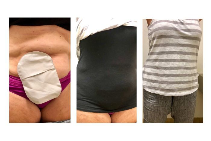 Three pictures of a woman with an ileostomy bag, singlet covering and then clothing over the singlet.