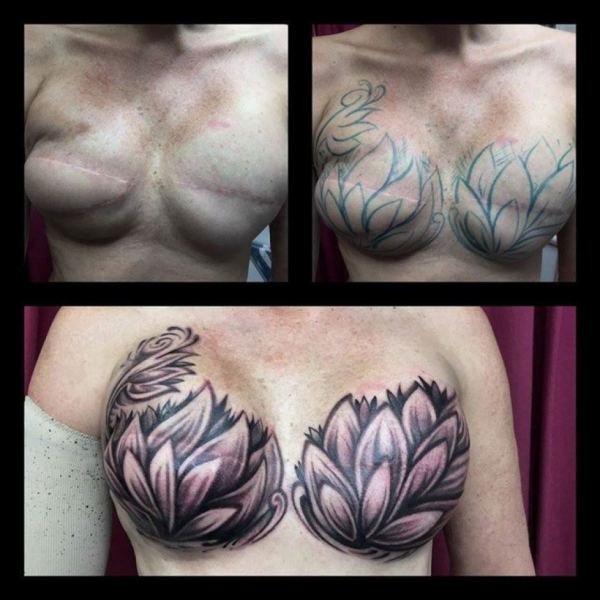 Post reconstructive surgery breast tattoo   ABC News  Australian     Three series of photos showing a woman s breasts with tattoos drawn over  the top of reconstructive