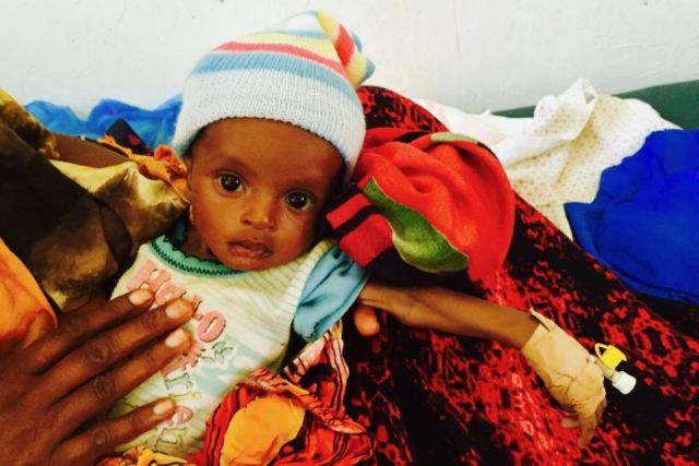 Three-month old baby Mohamed in Burao General Hospital
