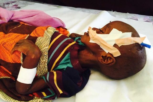 Child suffering from malnutrition in Somaliland