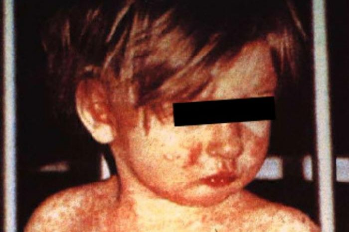 A child, a black box across his eyes to protect his identity, is covered in an angry red rash.