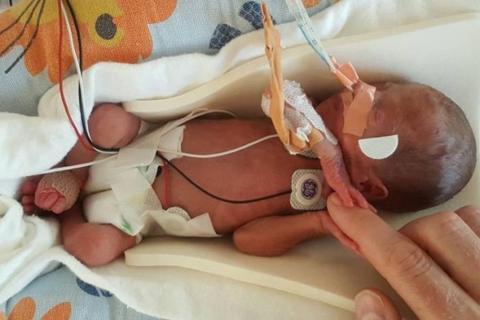 A premature baby in hospital.