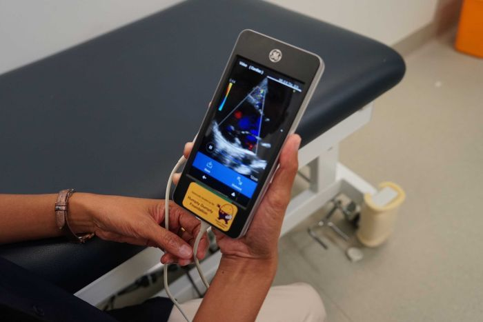 The hand-held echocardiography device known as a v-scanner.