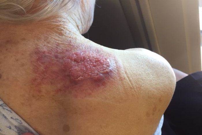 Tracey says her mother's skin cancer is now hard to treat.