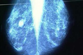 An international study has established a link between type 2 diabetes and advanced breast cancer.