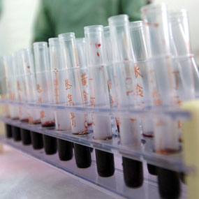 Heparin is widely used to prevent blood clotting (File photo)