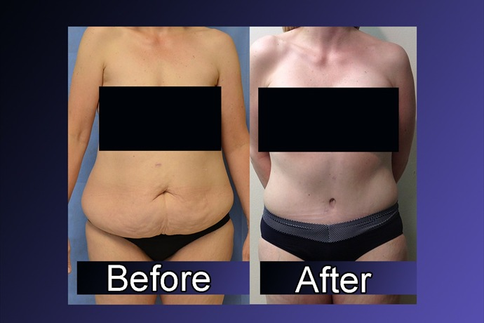 massive weight loss plastic surgery