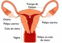 Pólipos uterinos