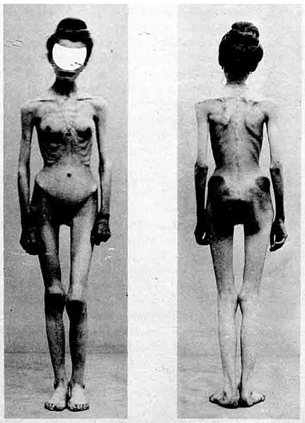 Anorexia Symptoms And Diagnosis