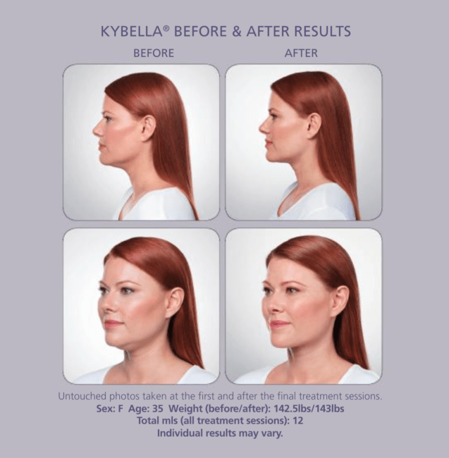 Does Kybella Work?