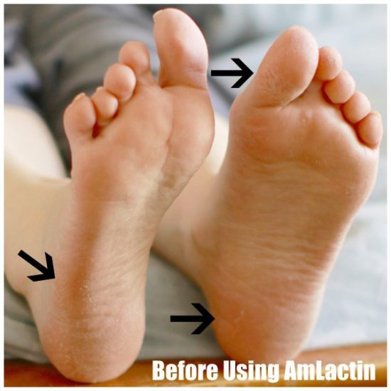 Before AmLactin Foot Therapy