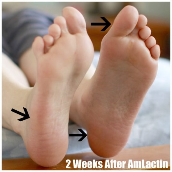 After using AmLactin Foot Cream for extremely dry skin