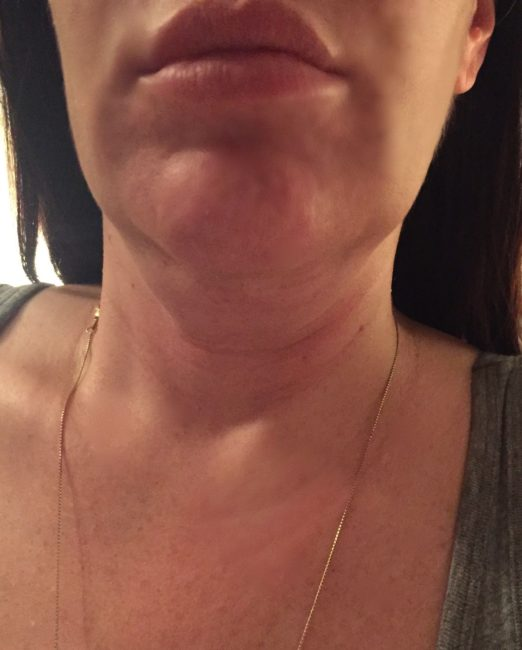 Swelling experienced from Kybella