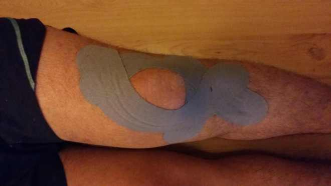knee taping pic