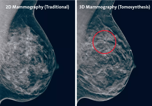 3D breast tomosynthesis