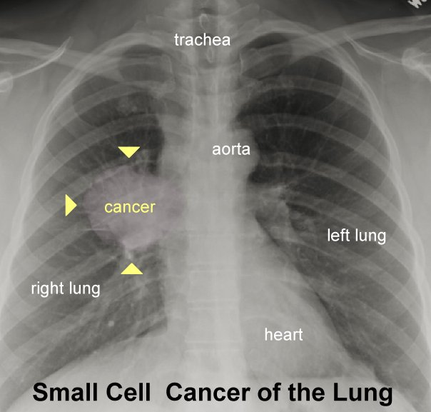 Image Result For Mesothelioma Ct Radiology For Screening Cancer