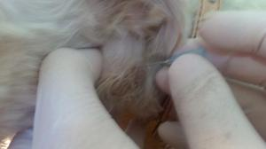 Punción del ganglio con aguja fina para diagnóstico
